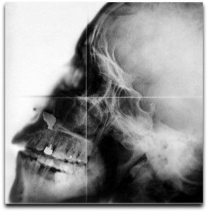 V0030081 X-ray, skull Credit: Wellcome Library, London. Wellcome Images images@wellcome.ac.uk http://wellcomeimages.org X-ray of a skull, in profile. Photograph, ca. 1915 1915 Published: - Copyrighted work available under Creative Commons Attribution only licence CC BY 4.0 http://creativecommons.org/licenses/by/4.0/